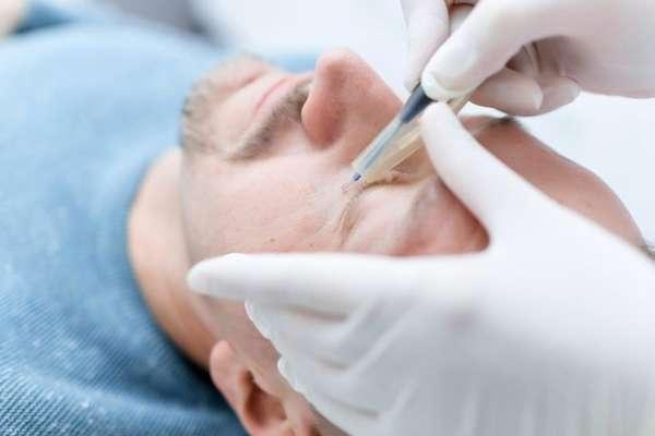 Радиоволновое удаление нароста на лице