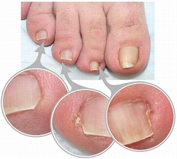Воспаление на пальцах ног
