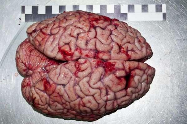 Эмболия сосудов головного мозга