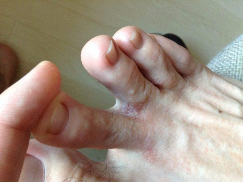 Грибок между пальцев