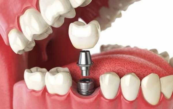 Металлический имплант для зуба