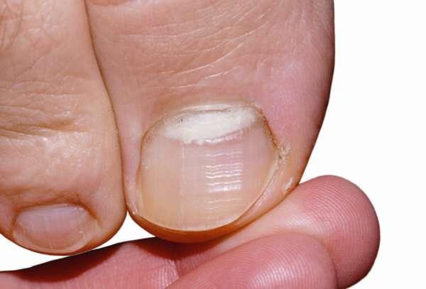 Начальная стадия грибка ногтя