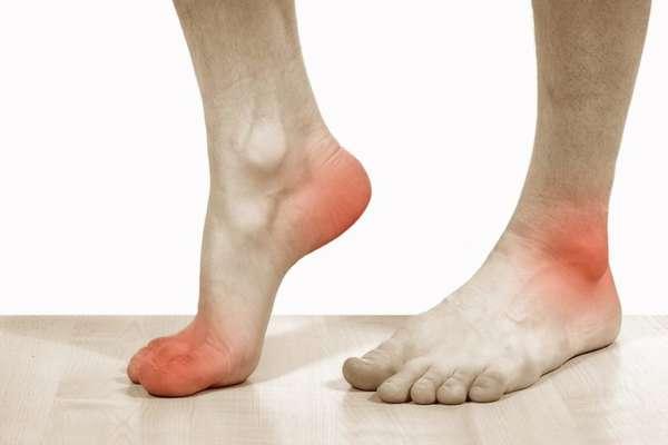 Зуд на ногах