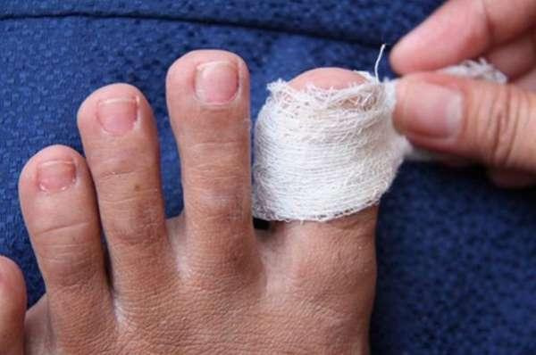 Компресс на палец