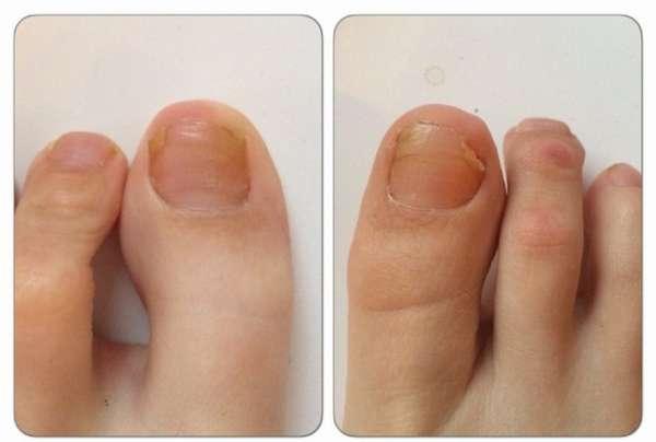 Грибковые ногти до и после применения крема