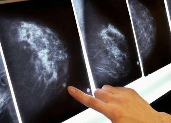 Изучение снимка груди