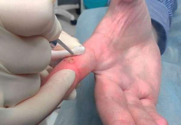 Удаление бородавки на пальце