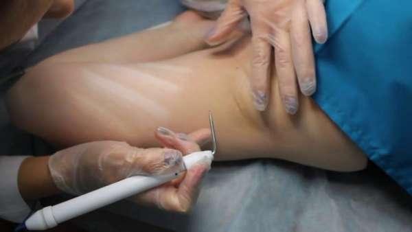 Аппаратное удаление бородавки под мышкой