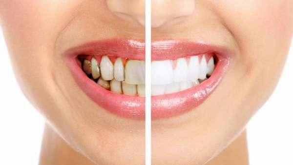 Зубы до и после отказа от курения