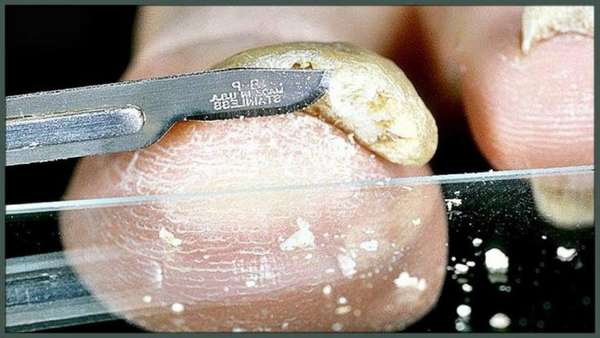 Ноготь на анализ грибка