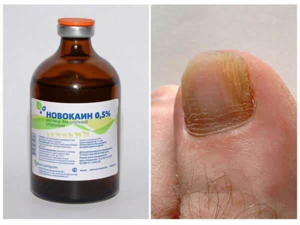 Новокаин при грибке ногтей