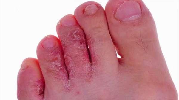 Грибок между пальцев ноги