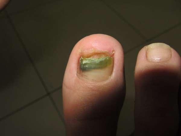 Потемнение на ногте