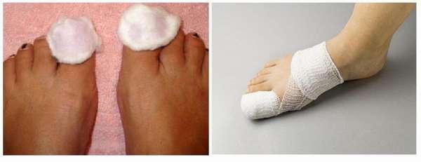 Компрессы от грибка на ногтях