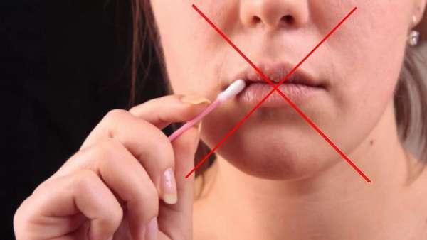 Лечение наростов на губах