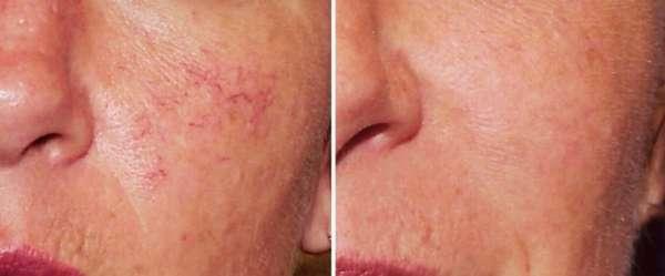 Маленькие капилляры на лице