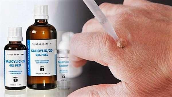 Салициловая кислота от бородавок