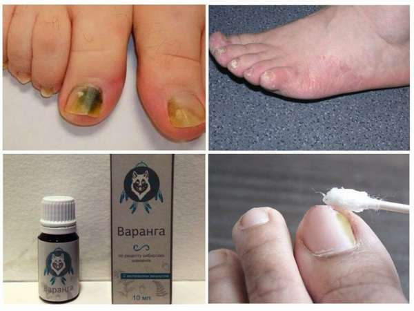 Применение препарата Варанга