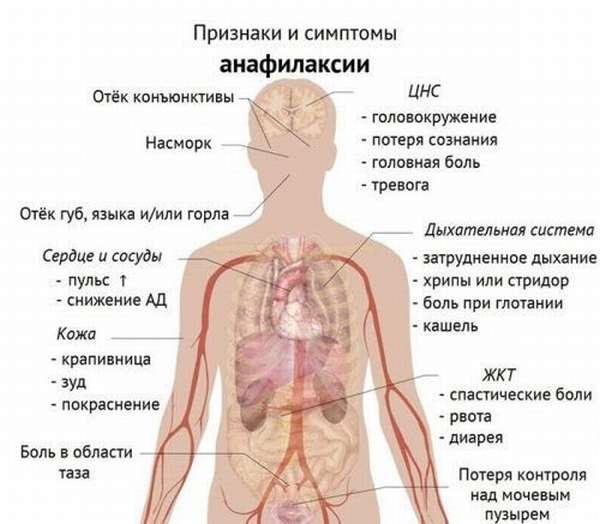 Признаки анафилаксии