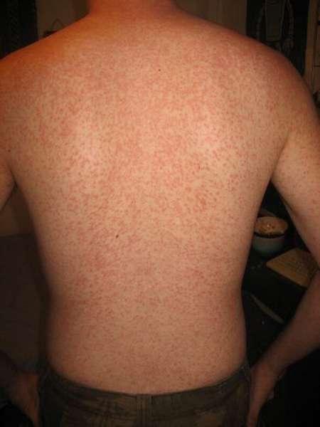Сыпь от аллергии