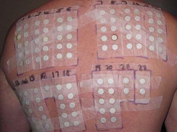 Кожные пробы на спине человека