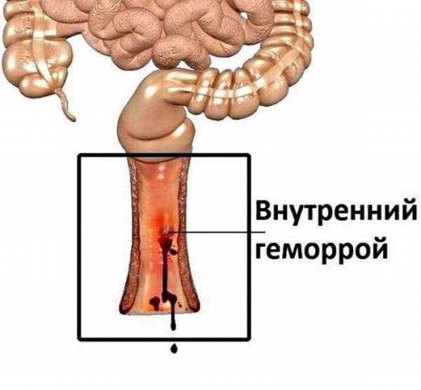 Геморрой Причины Возникновения И Лечение