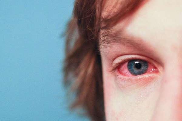 Фото аллергии на глазу