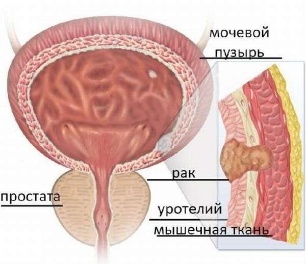 Удаление мочевого пузыря при раке