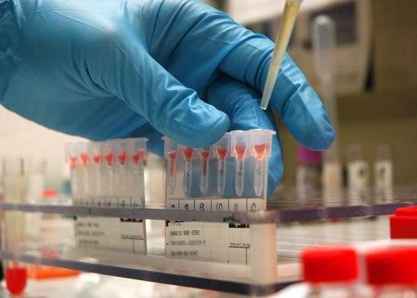 Как проводится анализ крови