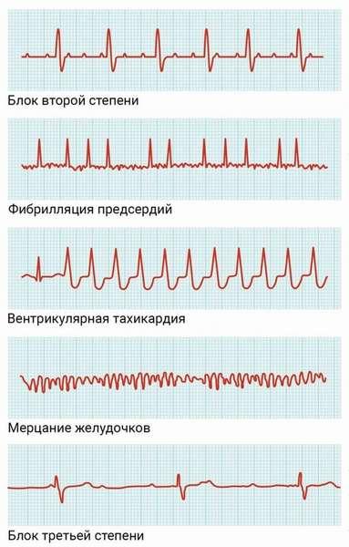 Разновидности нарушений сердечного ритма