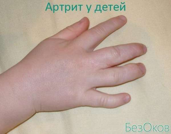 Артрит пальцев рук у детей