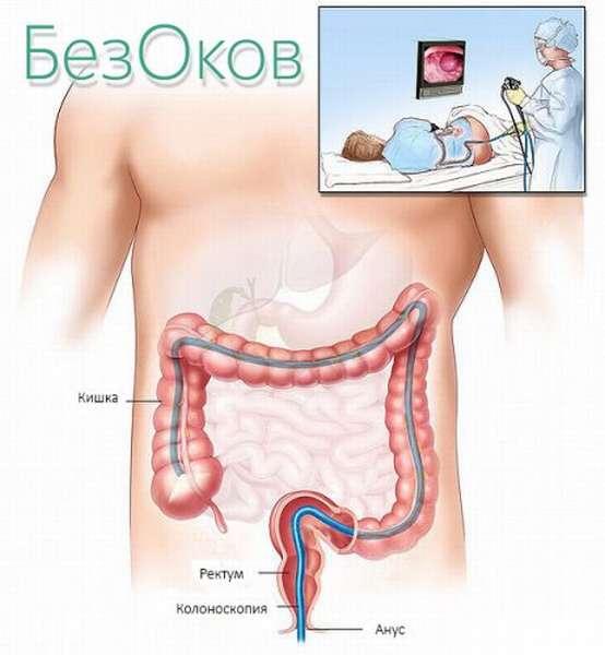 Колоноскопия для организма