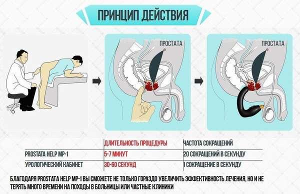 Действие Prostata Help Mp 1