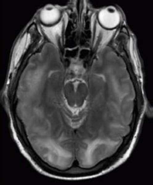 Энцефалопатия Гайе Вернике на МРТ