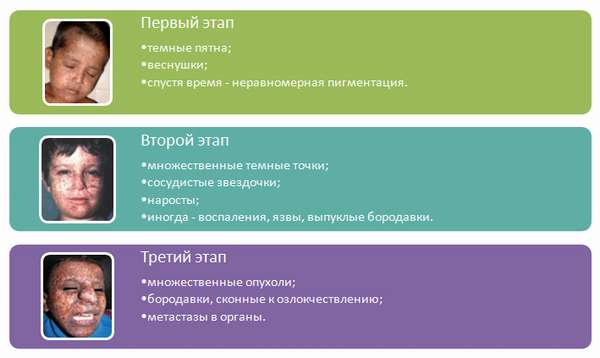Этапы пигментной ксеродермы