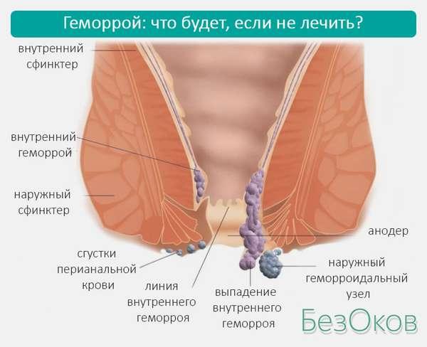 Сфинктер, прямая кишка, наружный и внутренний геморрой