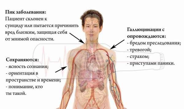 Признаки алкогольных галлицинозов