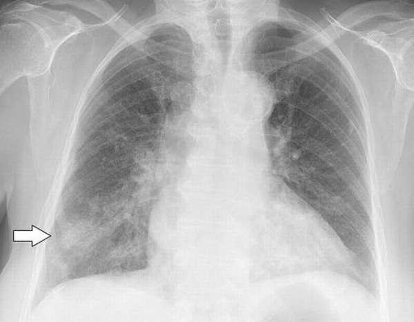 Хронический туберкулез