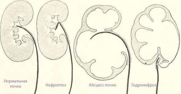 Разновидности болезней почек