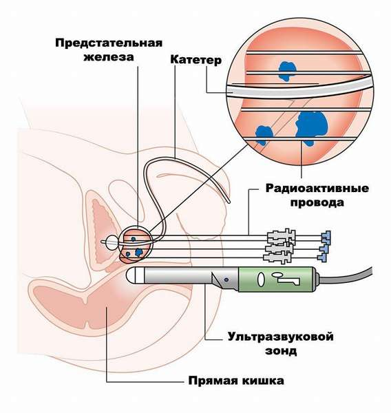 Исследование рака предстательной железы