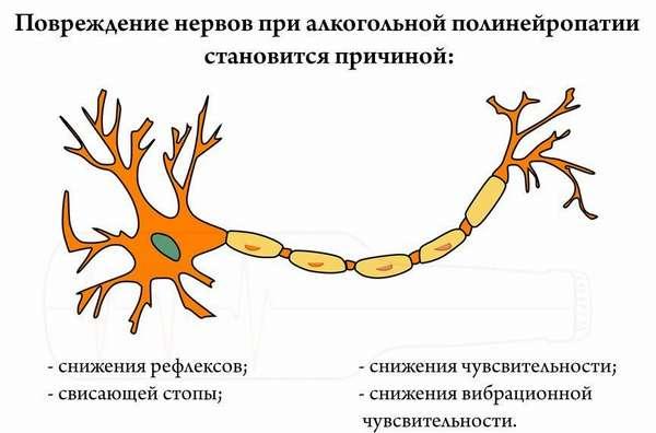 Признаки полиневрита