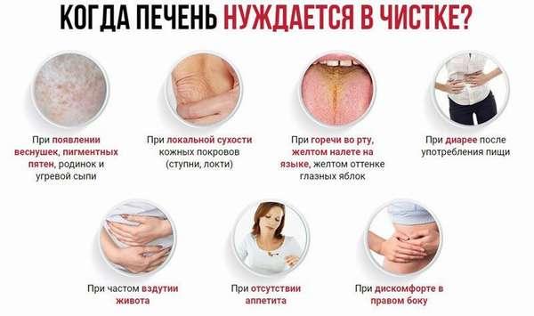 Симптомы больной печени