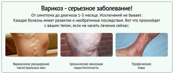 Осложнения варикоза