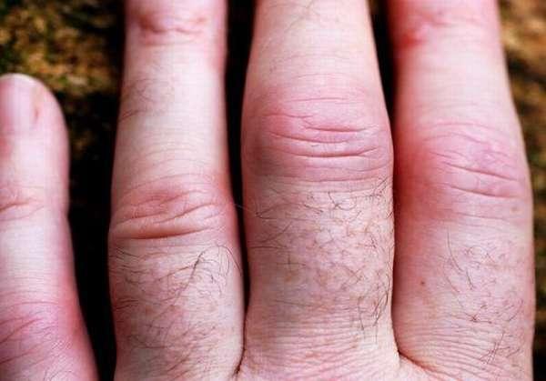 Пальцы при ревматоидном артрите