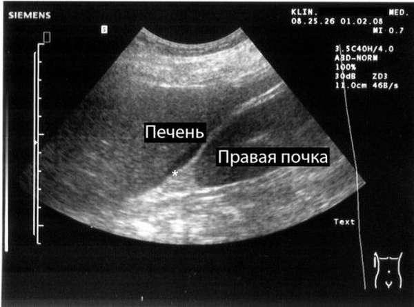 Перитонит на УЗИ