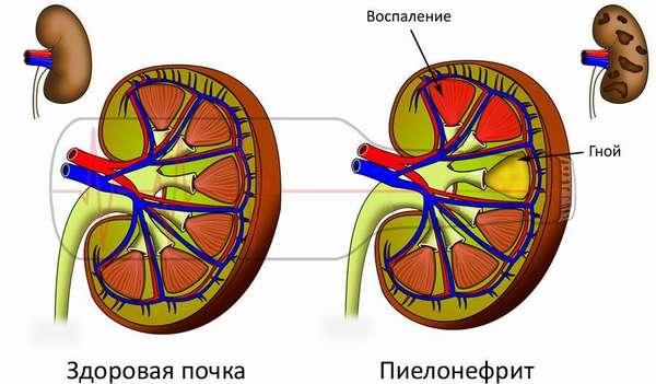 Признаки пиелонефрита и норма