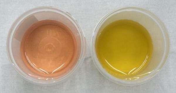 Розовый и ярко-желтый оттенки мочи