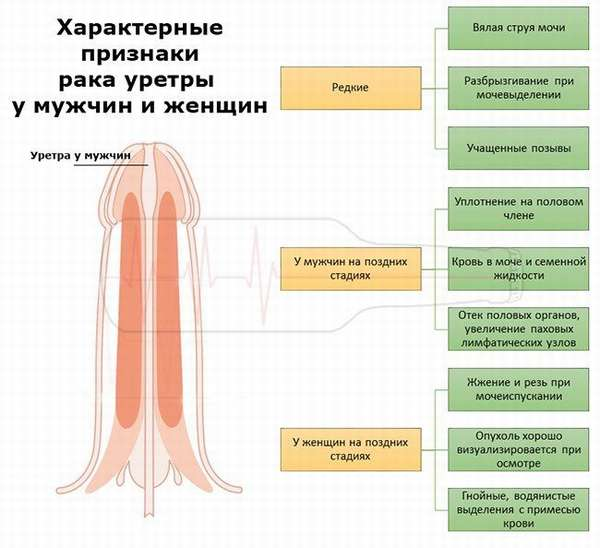 Характерные признаки рака уретры