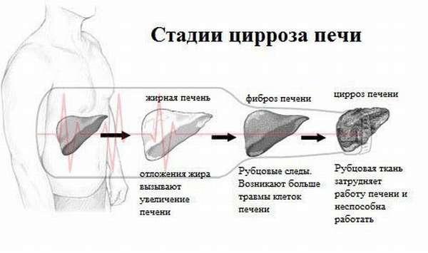 Процесс развития болезни