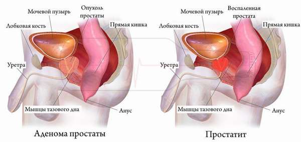 Признаки простатита и аденомы